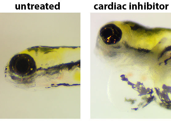 zebrafish larvae with and without cardiac inhibitor treatment-pericardial sac expansion of the heart
